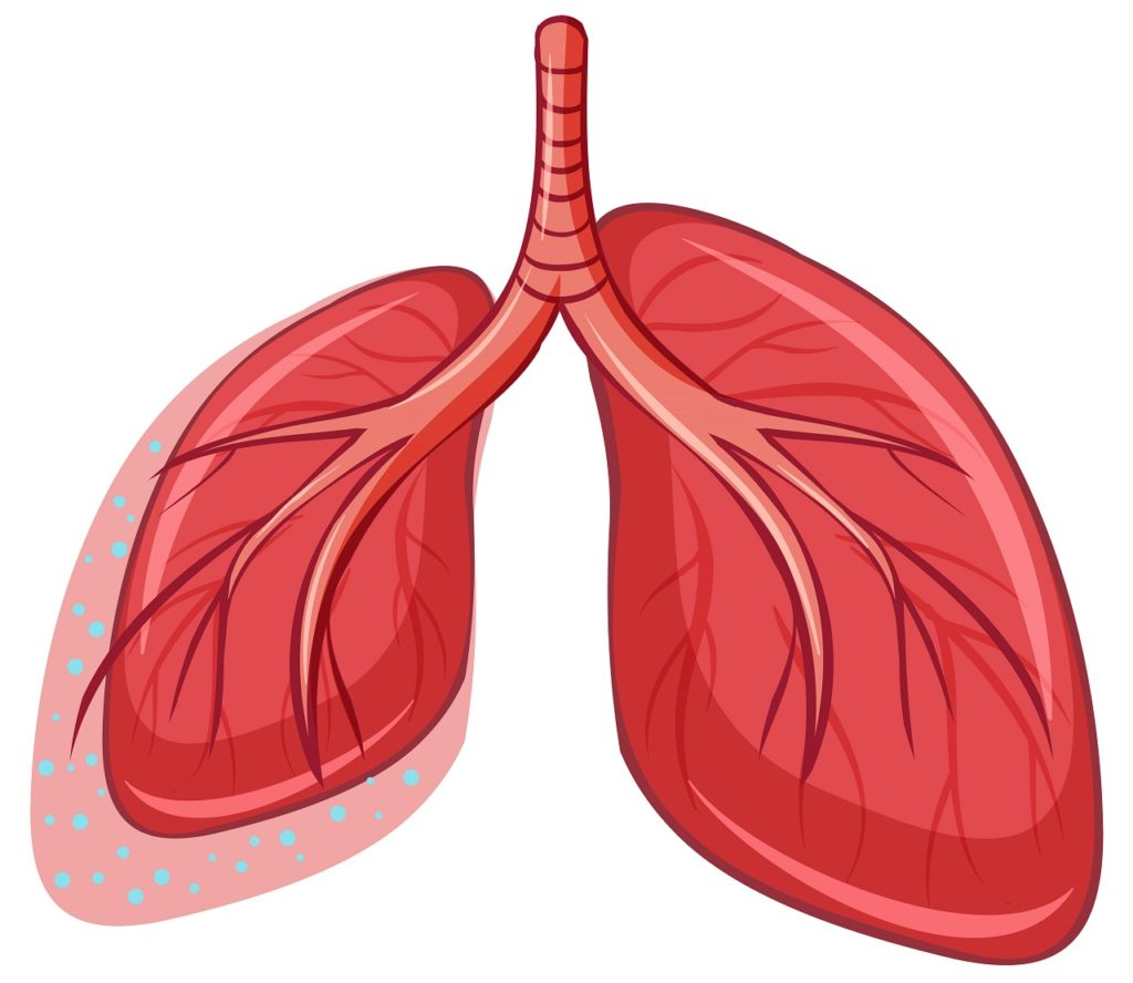 Complicazioni respiratorie e Charcot-Marie-Tooth