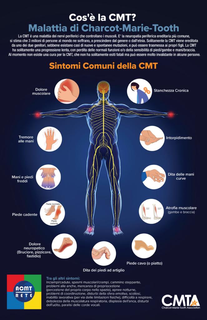 I Sintomi più comuni della Charcot-Marie-Tooth