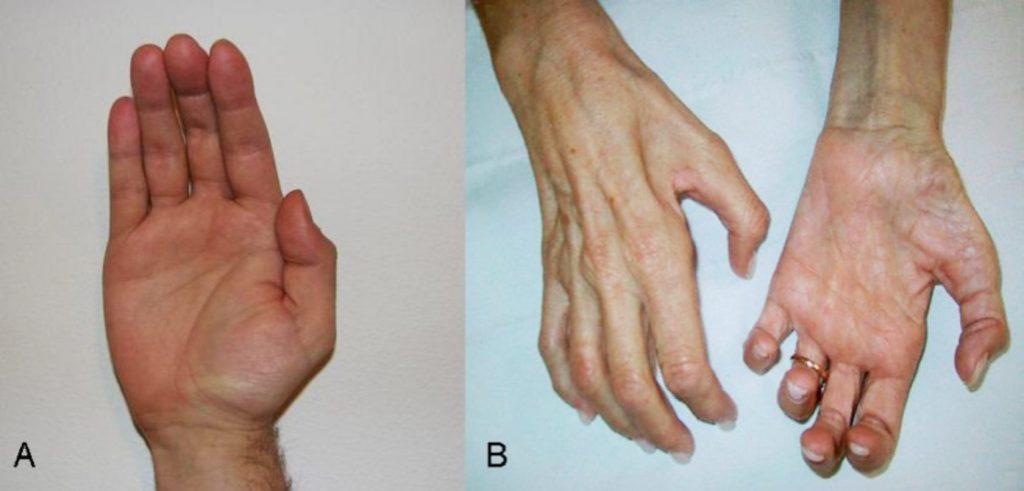 La mano nella CMT, o malattia di Charcot-Marie-Tooth, aspetto e problemi